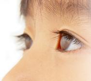 めめ先生の目目チェック~右目・左目みてもらおう~目のことなら、お近くの眼科専門医で。
