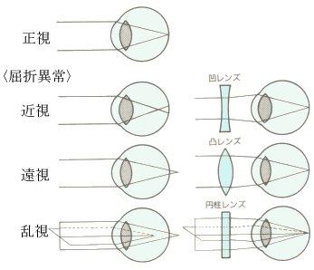 3. 近視は屈折異常の一種 | 子供...