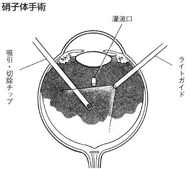 体 手術 硝子